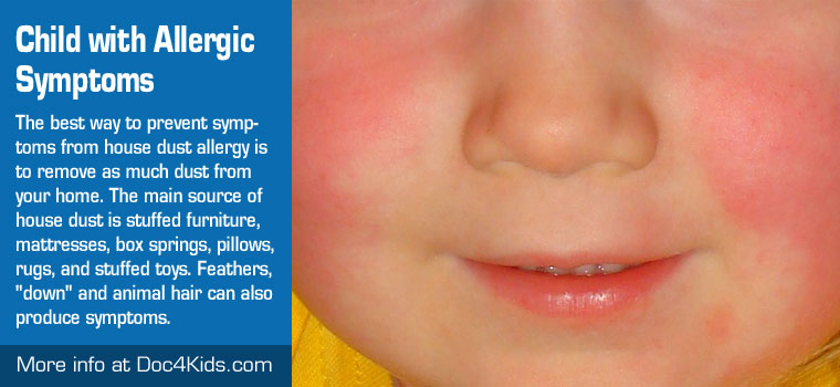 Child with Allergic Symptoms