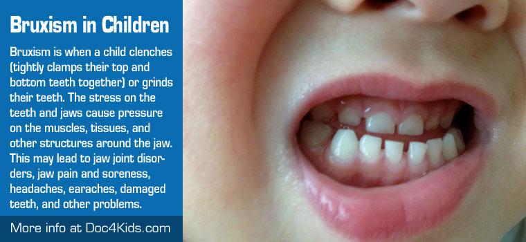 Treatment For Bruxism Tmj Or Tempero Mandibular Joint In