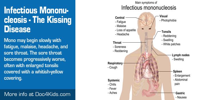 The Kissing Disease - Infectious Mononucleosis - Pediatric