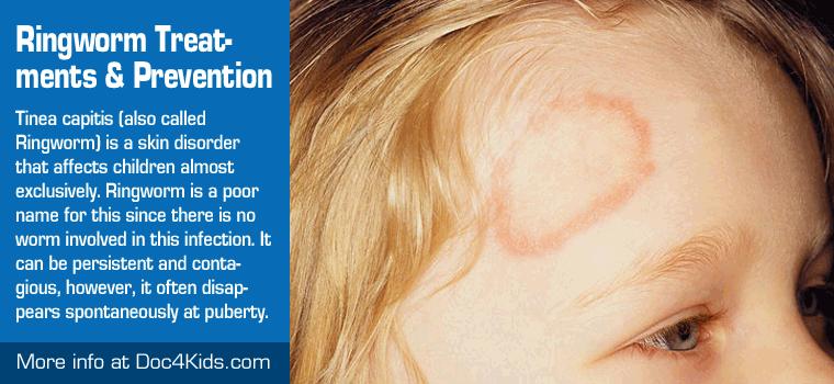 Ringworm Symptoms, Treatments and Prevention - Pediatric Affiliates